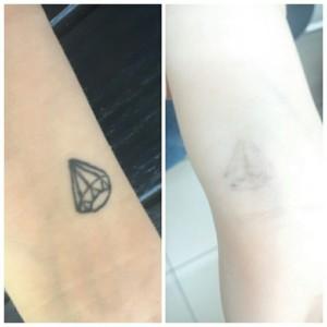 Лазерное удаление тату Фото 10