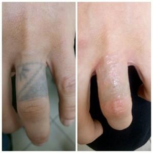 Удаление татуировок лазером Фото 2