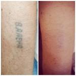 Удаление татуировок лазером Фото 3