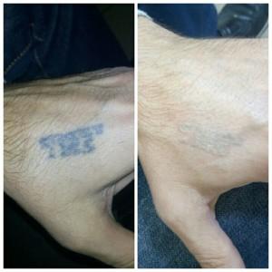Лазерное удаление тату Фото 4
