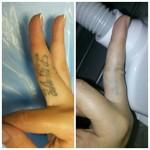 Лазерное удаление тату Фото 5