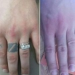 Лазерное удаление тату Фото 7