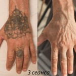tattoo removal kiev result