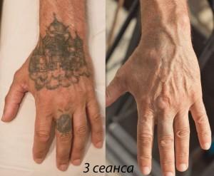 фото результат удаление татуировки киев
