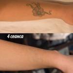 результат удаление татуировки киев