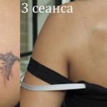 tattoo removal kiev result